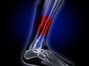 Broken Bones Injury